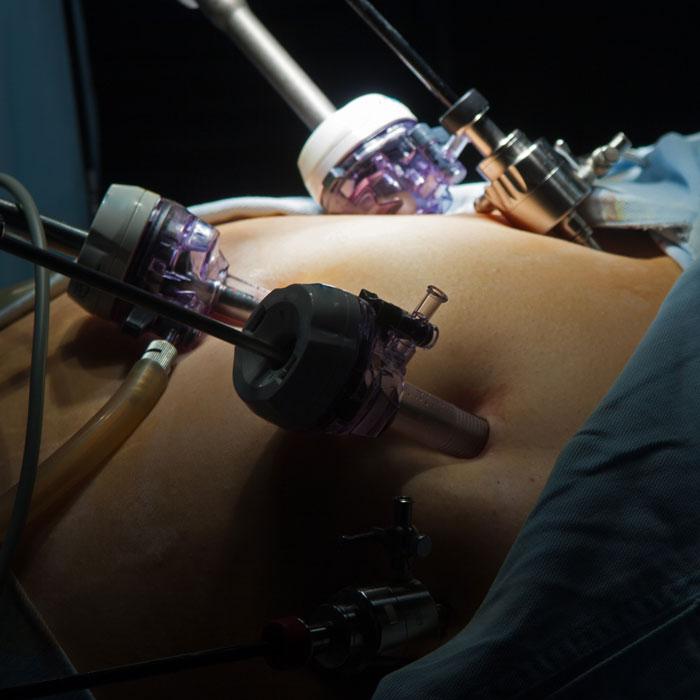 Operacije u ginekologiji