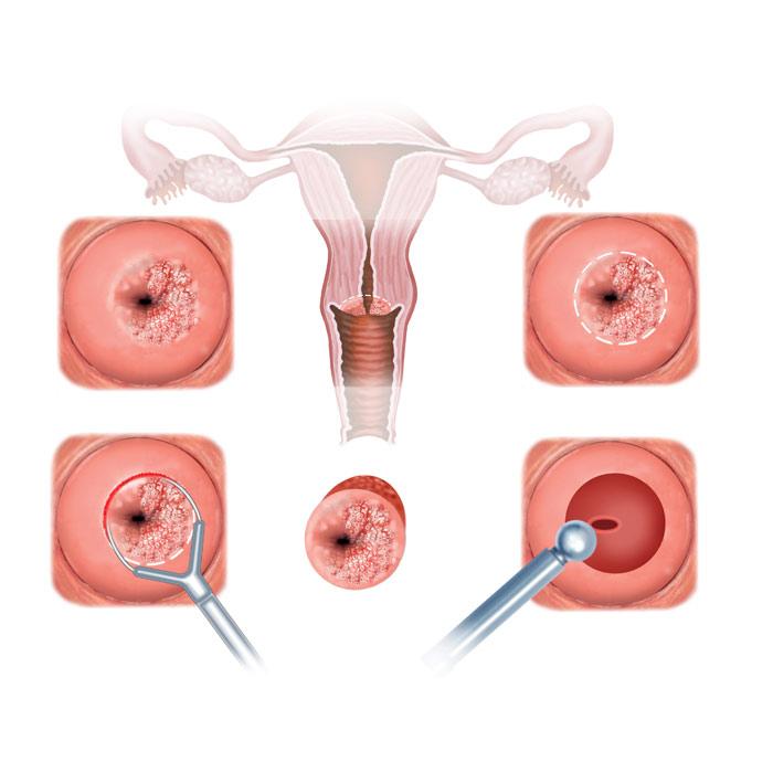 operacije